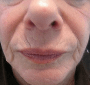 Fillers. Before Treatment photos - female, front view, patient 9