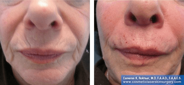 Fillers. Before and After Treatment photos - female, front view, patient 9