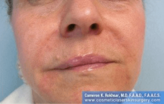 Fillers. After Treatment photos - female, front view, patient 7