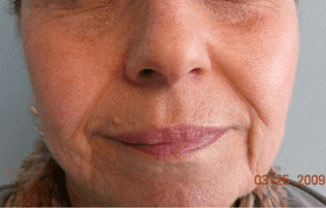 Fillers. Before Treatment photos - female, front view, patient 7