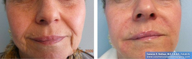 Fillers. Before and After Treatment photos - female, front view, patient 7