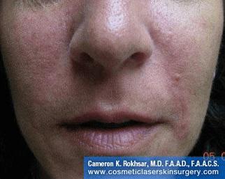 Radiesse for Nasolabial Folds - After treatment photos, patient 1