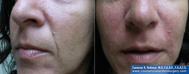Radiesse for Nasolabial Folds - Before and After treatment photos, patient 1