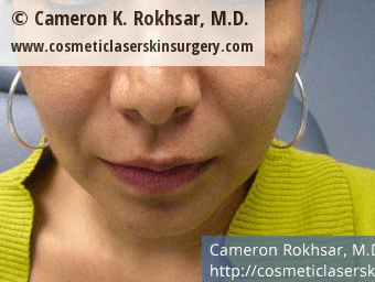 Fillers. Before Treatment photos - female, front view, patient 8
