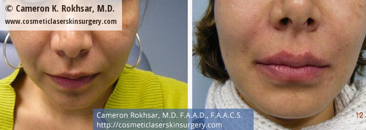 Fillers. Before and After Treatment photos - female, front view, patient 8