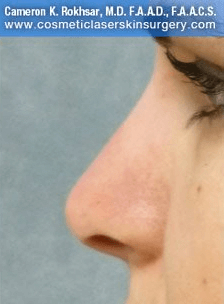 Fillers. After Treatment photos - female, left side view, patient 10