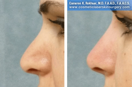 Fillers. Before and After Treatment photos - female, left side view, patient 10