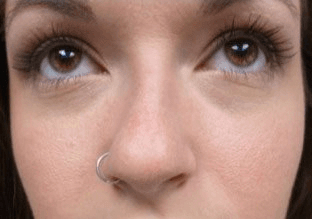 Non Surgical Nosejob - Before treatment photo, female, front view, patient 44