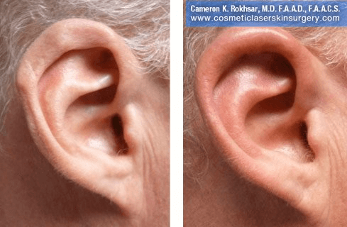 Fillers. Before and After Treatment photos - ear right side view, patient 6