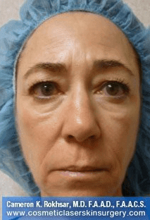 Fillers. After Treatment photos - front view, female patient 28