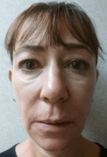Fillers. Before Treatment photos - front view, female patient 28
