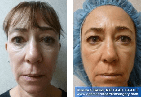 Fillers. Before and After Treatment photos - front view, female patient 28