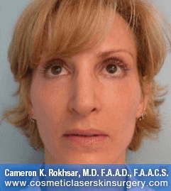 Radiesse for Cheeks and Juvederm for Nasolabials - After treatment photos, patient 1