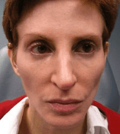 Radiesse for Cheeks and Juvederm for Nasolabials - Before treatment photos, patient 1