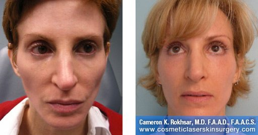 Radiesse for Cheeks and Juvederm for Nasolabials - Before and After treatment photos, patient 1
