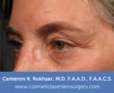 Ultherapy After Treatment Photo - patient 4