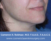 Ultherapy - After treatment photo, female right side oblique view, patient 2