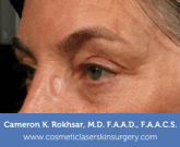 Ultherapy Before Treatment Photo - patient 4