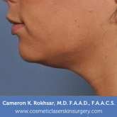 Ultherapy Before Treatment Photo - patient 2