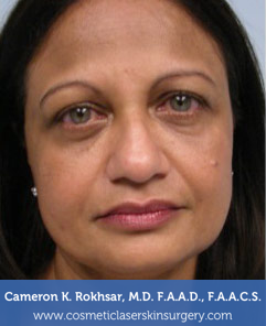 Ultherapy Before Treatment Photo - patient 1