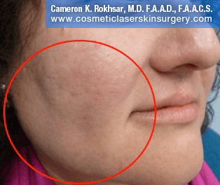 V-Beam Laser After Treatment Photo - patient 2