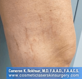 Sclerotherapy After Treatment Photo - patient 1
