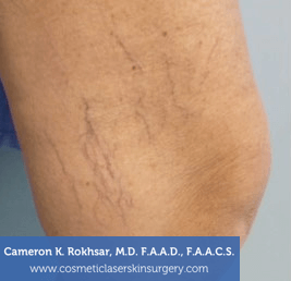Sclerotherapy Before Treatment Photo - patient 1