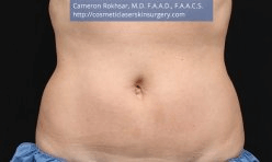 CoolSculpting. After Treatment photo, female - front view, patient 3