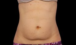 CoolSculpting. Before Treatment photo, female - front view, patient 2