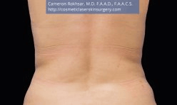 CoolSculpting. After Treatment photo, female - back view, patient 1