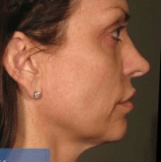 Ultherapy - After treatment photo, female, right side view, patient 1