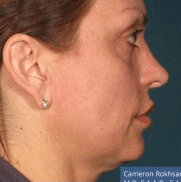 Ultherapy - Before treatment photo, female, right side view, patient 1