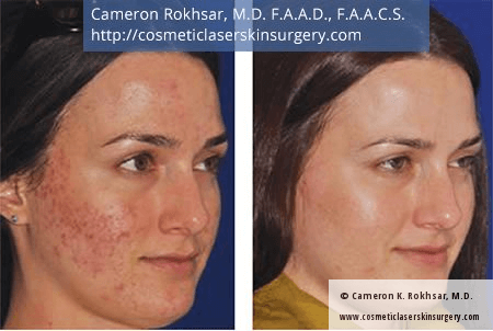 Microneedling. Before and After Treatment Photos - female, right side oblique view, patient 2