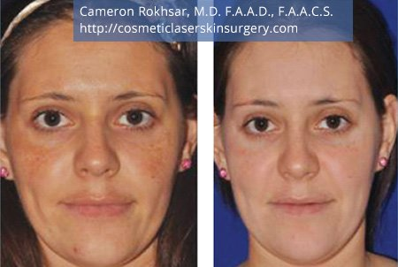 Microneedling. Before and After Treatment Photos - female, front view, patient 3