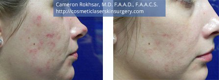Microneedling. Before and After Treatment Photos - female, right side view, patient 1