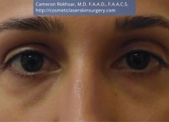 Non-Surgical Eye Lift. After Treatment Photo - front view, female patient 4