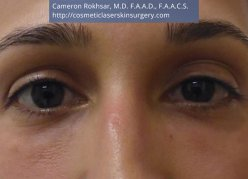 Non-Surgical Eye Lift. Before Treatment Photo - front view, female patient 4