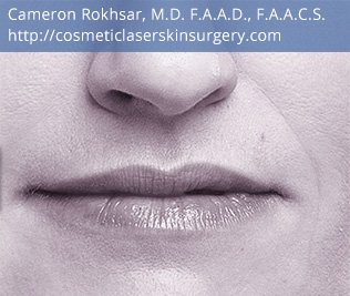 Volbella Injectable Filler for Lip Enhancement - After Treatment Photo - patient 1