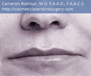 Volbella Injectable Filler for Lip Enhancement - After Treatment Photo - patient 3