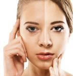 Cosmetic Surgeon In Upper East Side Nyc And Garden City Long Island Dermatologist