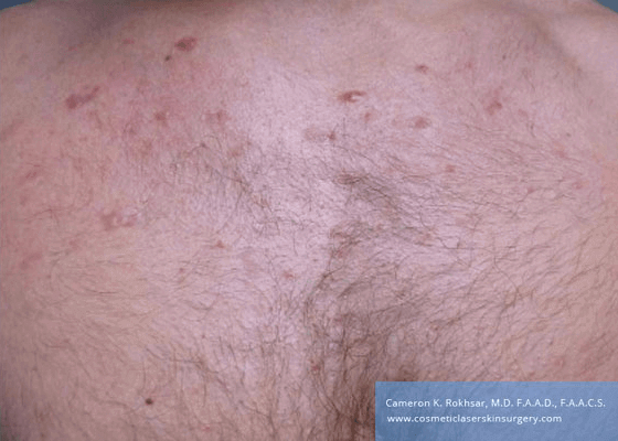 Laser Acne After Treatment Photo - patient was treated with cortisone injections and the VBEAM Perfecta laser.