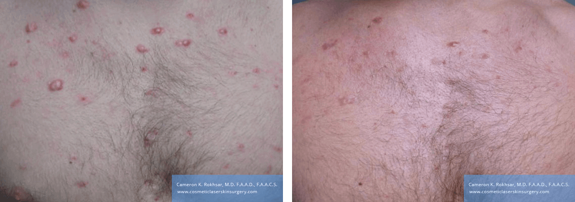Laser Acne Before and After Treatment Photo - patient was treated with cortisone injections and the VBEAM Perfecta laser.