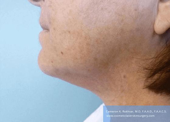 Liposculpture Liposuction - After Treatment photos, left side view, female, patient 25
