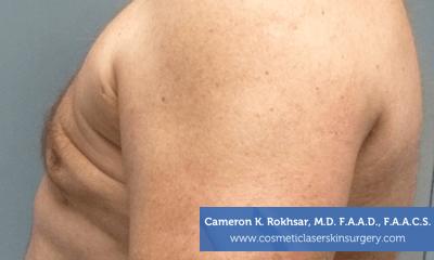 Liposculpture Liposuction - After Treatment photos, left side view, male patient 22