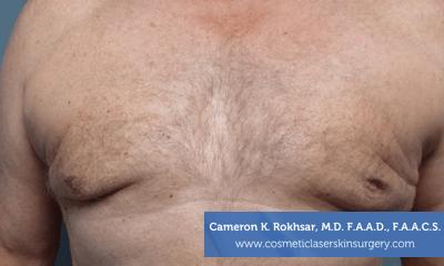Liposculpture Liposuction - After Treatment photo, front view, male patient 23