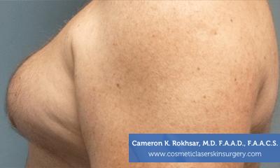 Liposculpture Liposuction - Before Treatment photos, left side view, male patient 22
