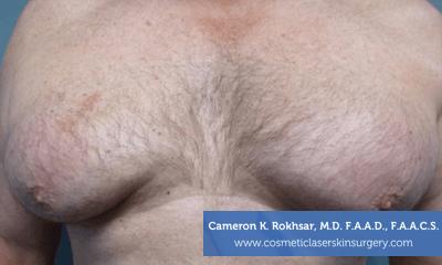 Liposculpture Liposuction - Before Treatment photo, front view, male patient 23
