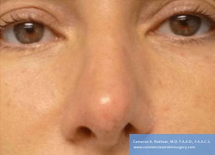 Non Surgical Nosejob - After treatment photo, female, front view, patient 46