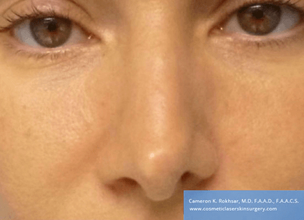 Non Surgical Nosejob - Before treatment photo, female, front view, patient 46