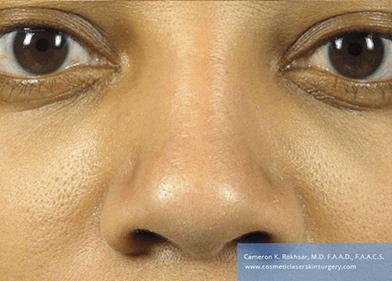 Non Surgical Nosejob - After treatment photo, female, front view, patient 47